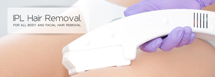 ipl hair removal in sunderland